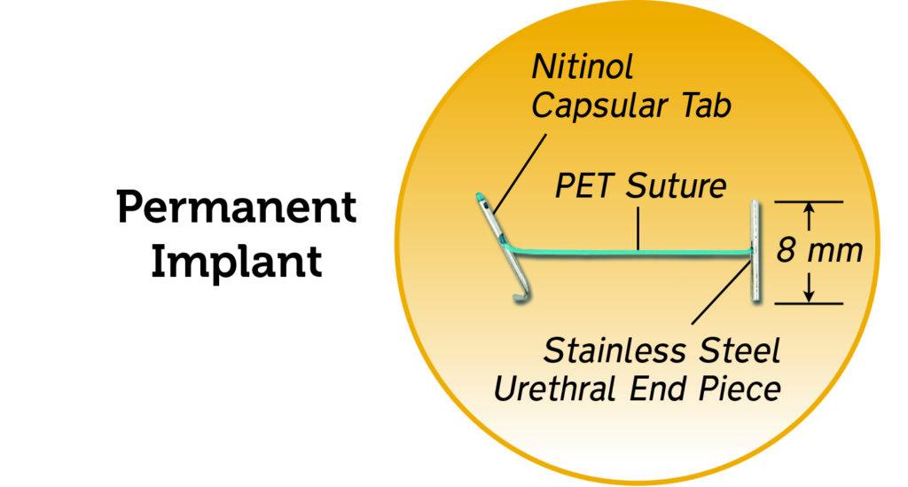 PermanentImplant